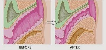 Có nên phẫu thuật thu hẹp âm đạo không?